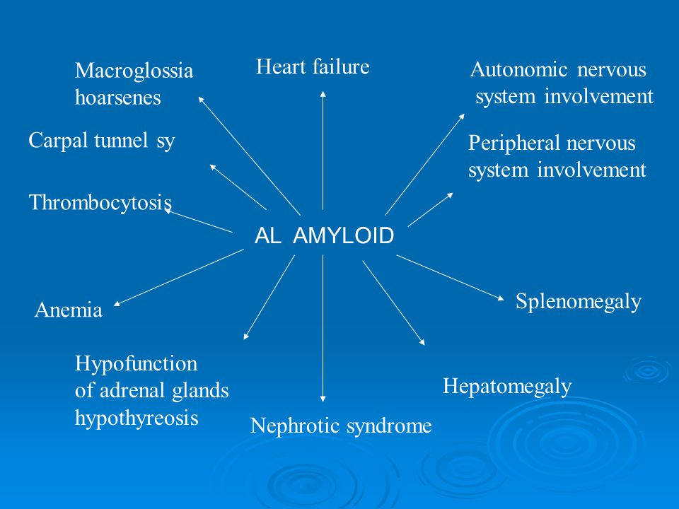 AL AMYLOID Heart failure Autonomic nervous system involvement Peripheral nervous system involvement Hepatomegaly Splenomegaly Nephrotic syndrome Macroglossia hoarsenes Hypofunction of adrenal glands hypothyreosis Anemia Thrombocytosis Carpal tunnel sy