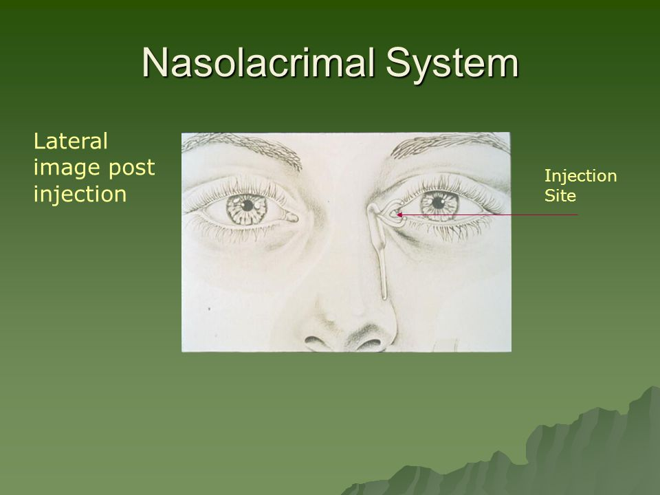 Nasolacrimal System Injection Site Lateral image post injection