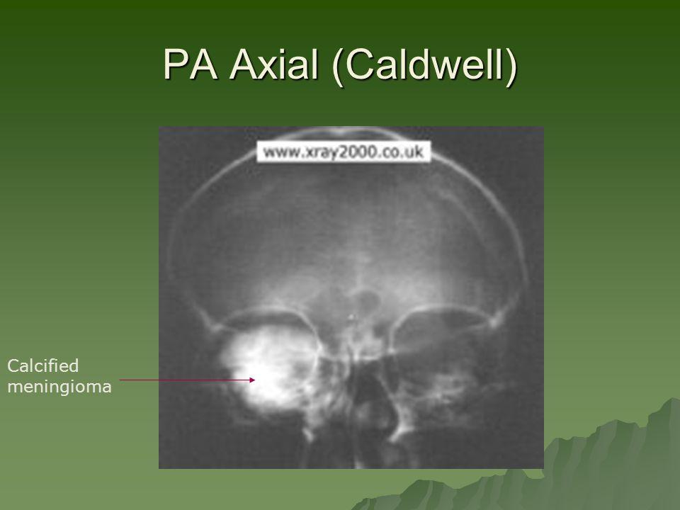 PA Axial (Caldwell) Calcified meningioma