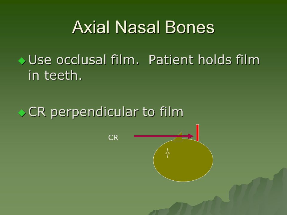 Axial Nasal Bones  Use occlusal film. Patient holds film in teeth.  CR perpendicular to film CR