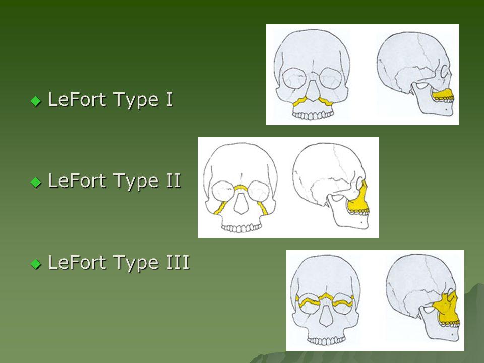  LeFort Type I  LeFort Type II  LeFort Type III