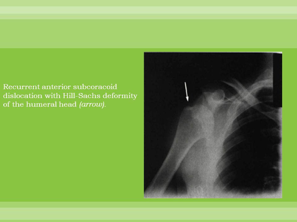 Recurrent anterior subcoracoid dislocation with Hill-Sachs deformity of the humeral head (arrow).