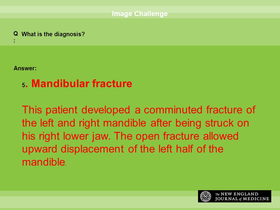 Answer: Image Challenge What is the diagnosis? Q:Q: 5. Mandibular fracture This patient developed a comminuted fracture of the left and right mandible