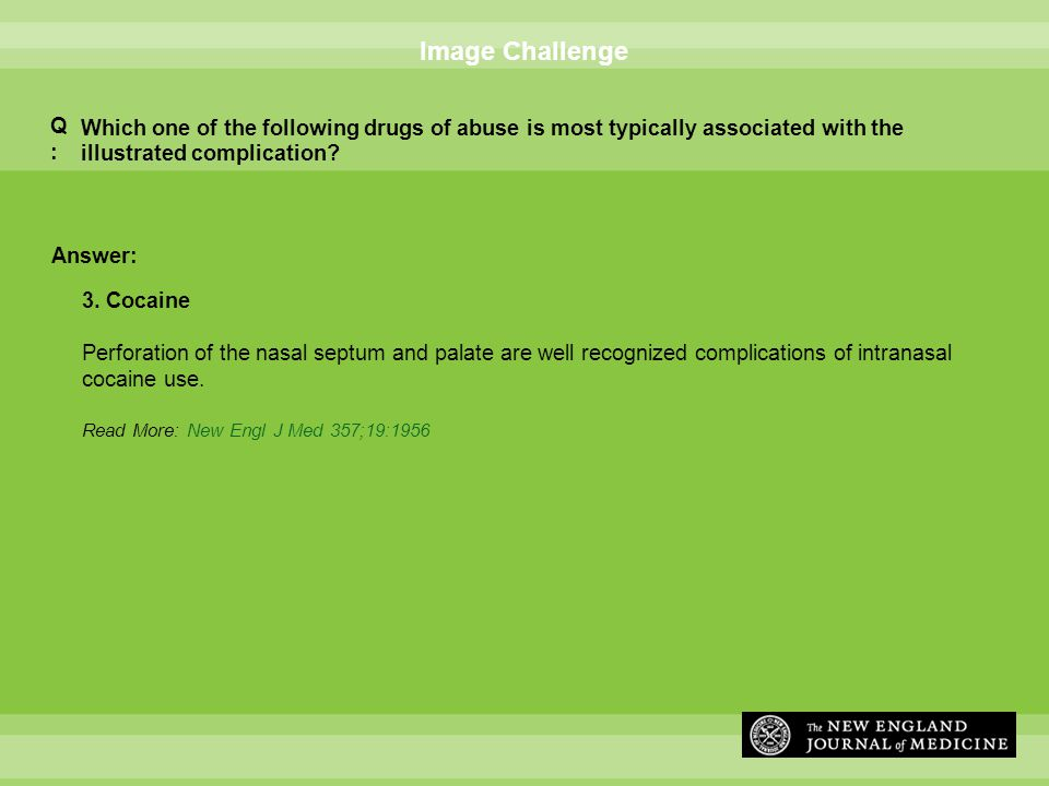 Answer: Image Challenge Which one of the following drugs of abuse is most typically associated with the illustrated complication.