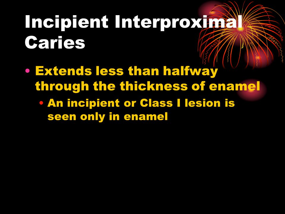 Incipient Interproximal Caries Extends less than halfway through the thickness of enamel An incipient or Class I lesion is seen only in enamel