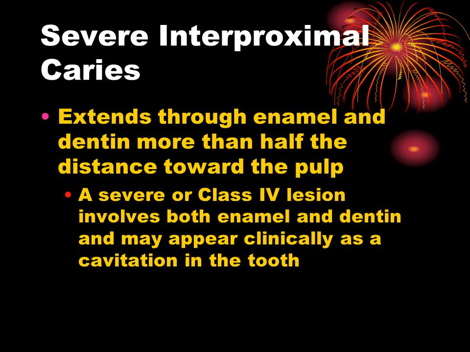 Severe Interproximal Caries Extends through enamel and dentin more than half the distance toward the pulp A severe or Class IV lesion involves both enamel and dentin and may appear clinically as a cavitation in the tooth