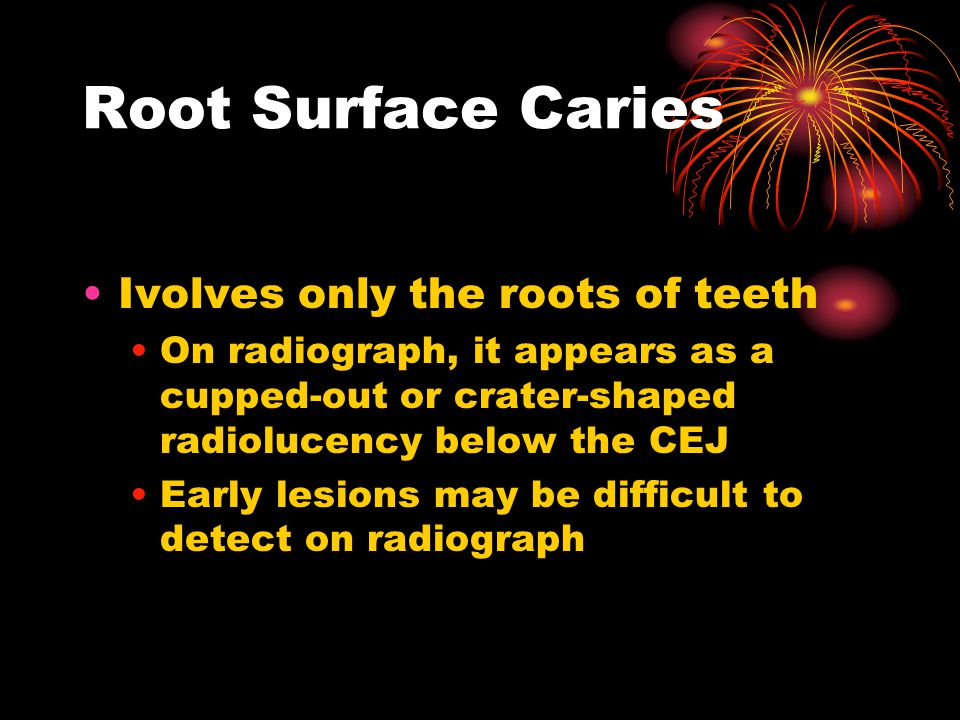 Root Surface Caries Ivolves only the roots of teeth On radiograph, it appears as a cupped-out or crater-shaped radiolucency below the CEJ Early lesions may be difficult to detect on radiograph