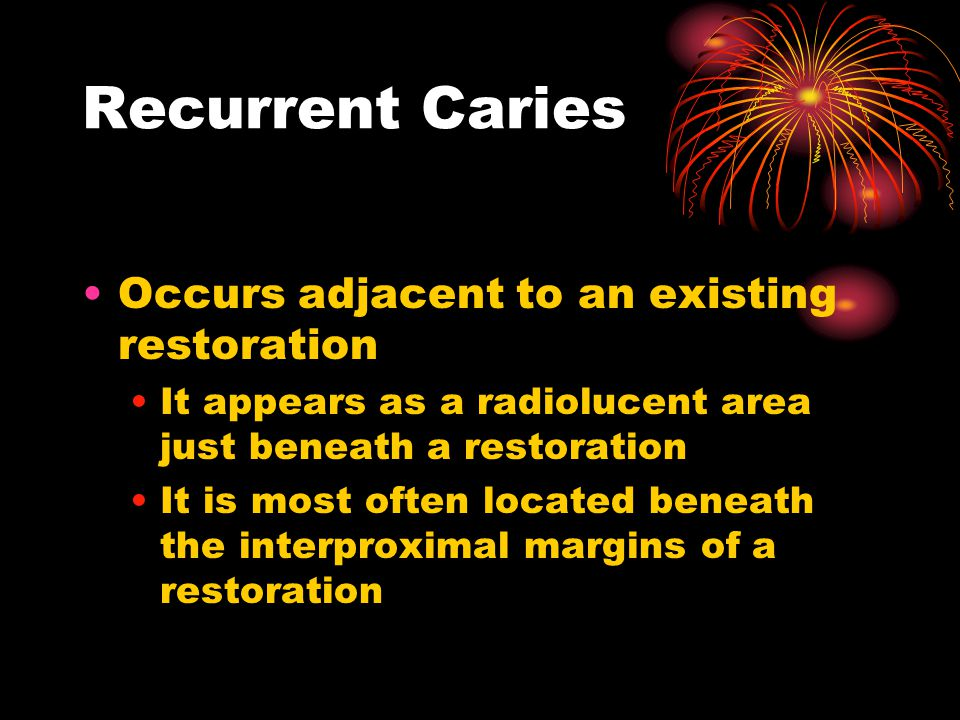 Recurrent Caries Occurs adjacent to an existing restoration It appears as a radiolucent area just beneath a restoration It is most often located beneath the interproximal margins of a restoration