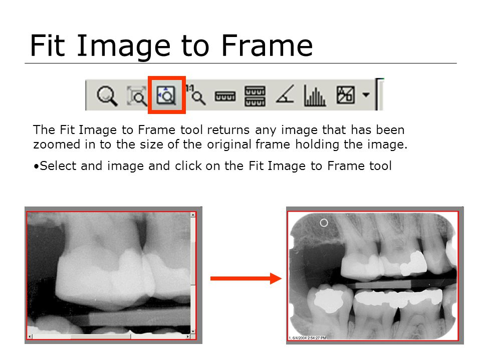 Fit Image to Frame The Fit Image to Frame tool returns any image that has been zoomed in to the size of the original frame holding the image. Select a