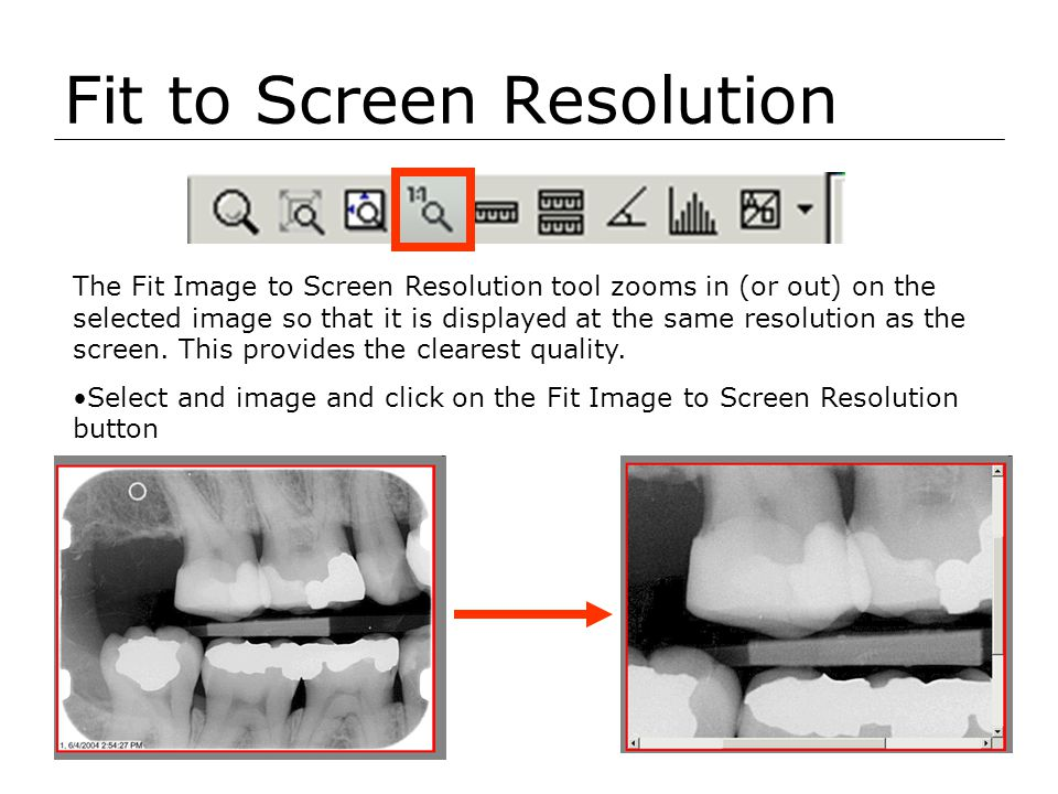Fit to Screen Resolution The Fit Image to Screen Resolution tool zooms in (or out) on the selected image so that it is displayed at the same resolutio