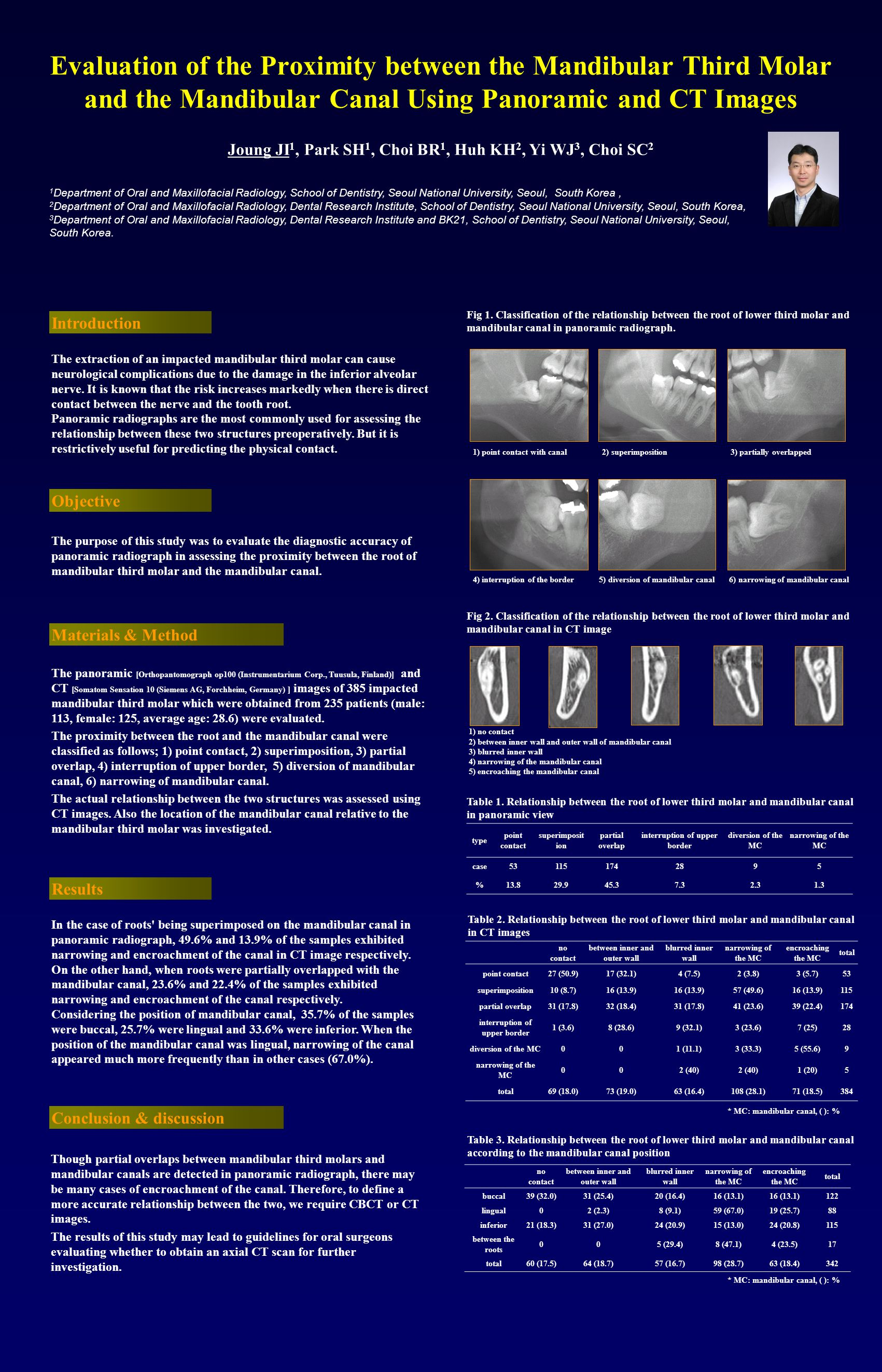 Evaluation of the Proximity between the Mandibular Third Molar and the Mandibular Canal Using Panoramic and CT Images Joung JI 1, Park SH 1, Choi BR 1, Huh KH 2, Yi WJ 3, Choi SC 2 Though partial overlaps between mandibular third molars and mandibular canals are detected in panoramic radiograph, there may be many cases of encroachment of the canal.