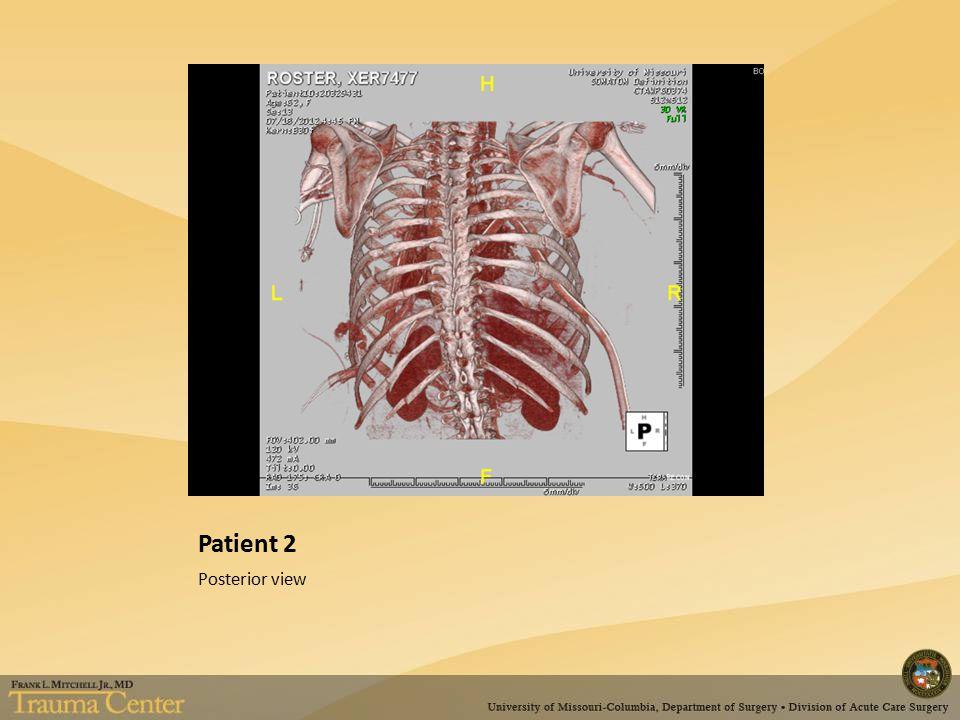 Patient 2 Posterior view