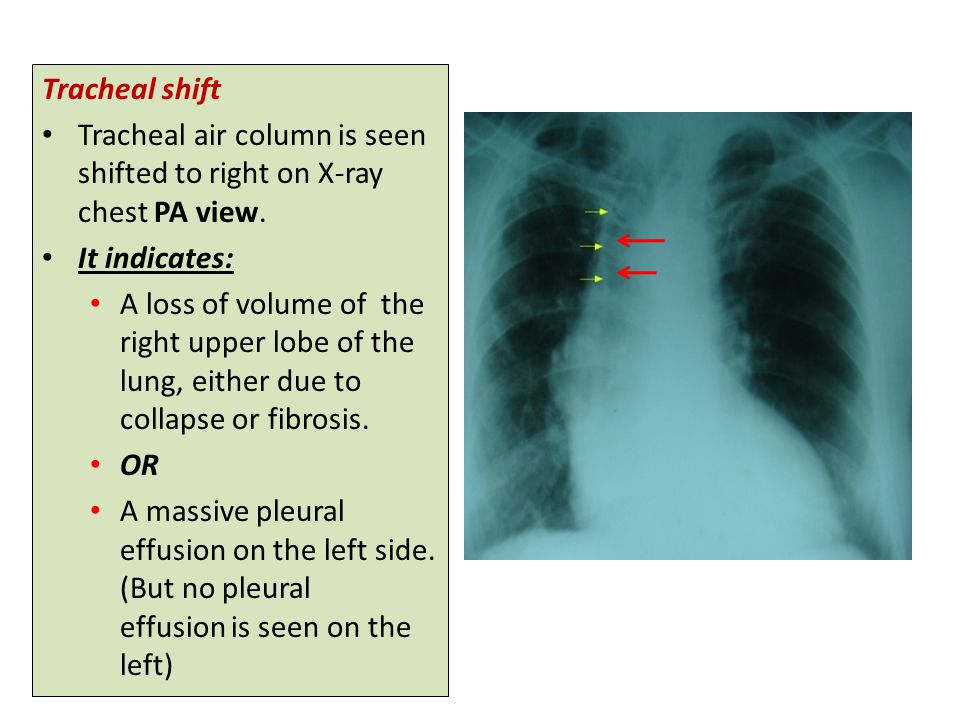 Tracheal shift Tracheal air column is seen shifted to right on X-ray chest PA view.
