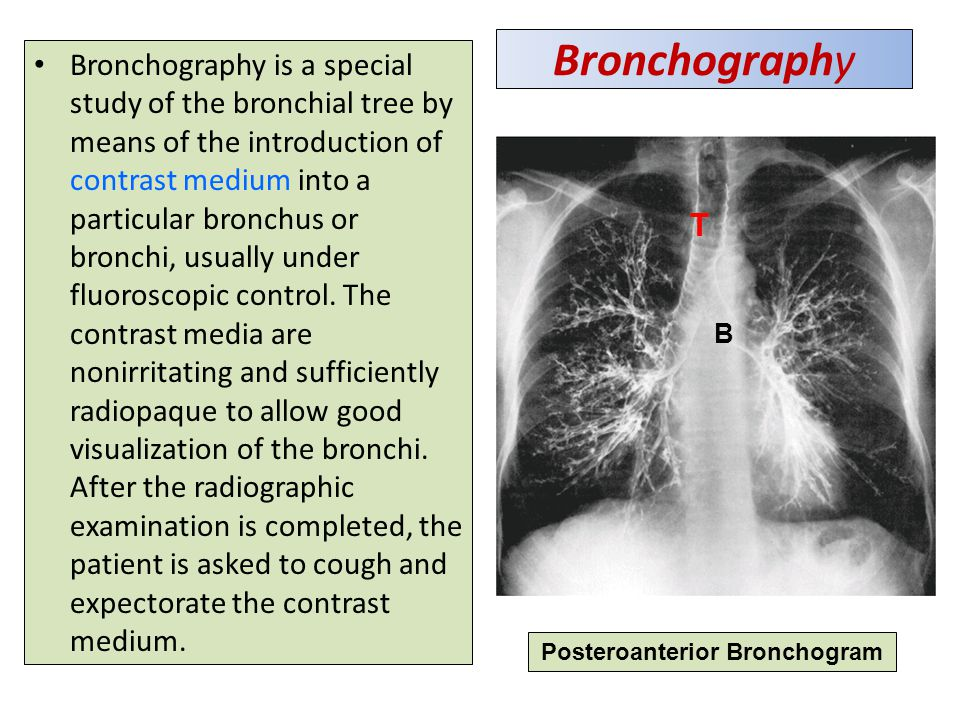 Bronchography Bronchography is a special study of the bronchial tree by means of the introduction of contrast medium into a particular bronchus or bronchi, usually under fluoroscopic control.