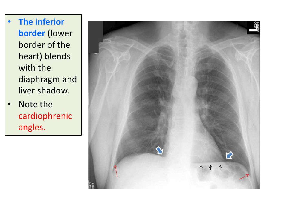 The inferior border (lower border of the heart) blends with the diaphragm and liver shadow.