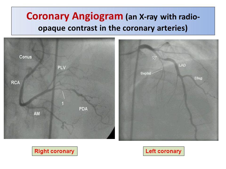 Coronary Angiogram (an X-ray with radio- opaque contrast in the coronary arteries) Right coronaryLeft coronary