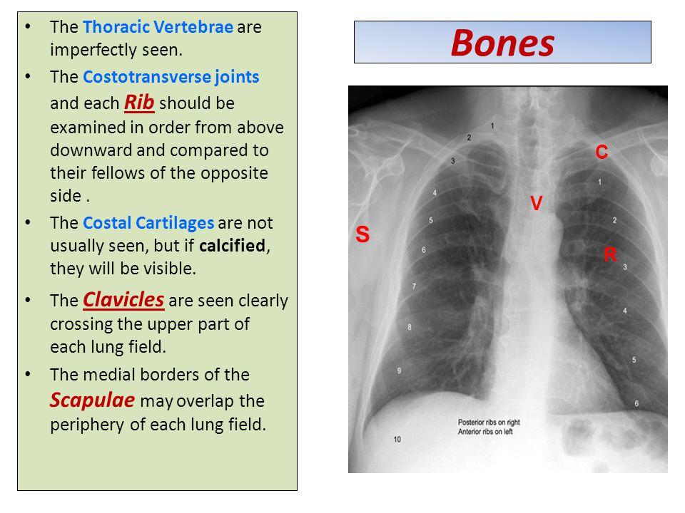 Bones The Thoracic Vertebrae are imperfectly seen.