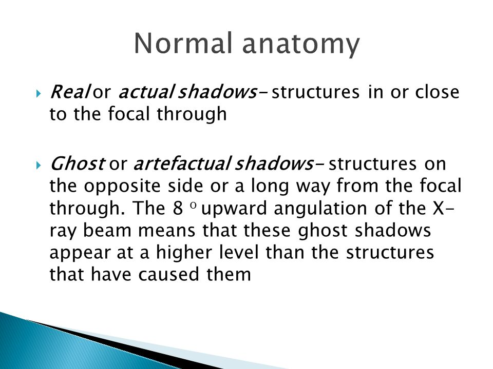 Real or actual shadows- structures in or close to the focal through  Ghost or artefactual shadows- structures on the opposite side or a long way from the focal through.