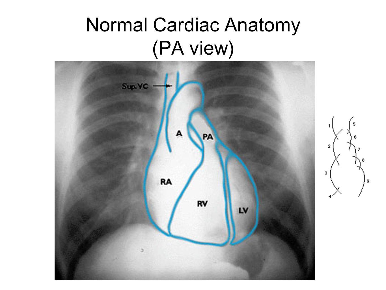 Normal Cardiac Anatomy (PA view)