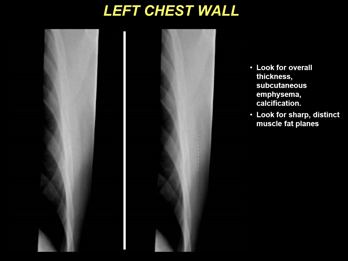 LEFT CHEST WALL Look for overall thickness, subcutaneous emphysema, calcification. Look for sharp, distinct muscle fat planes