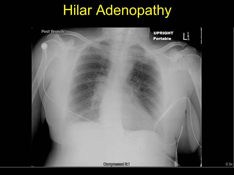 Hilar Adenopathy
