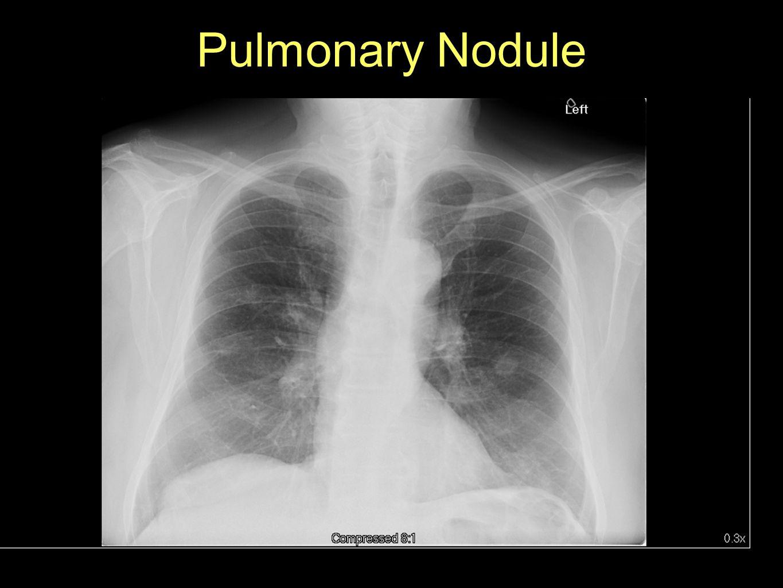 Pulmonary Nodule