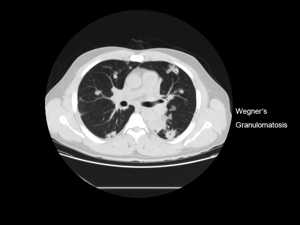 Wegner's Granulomatosis