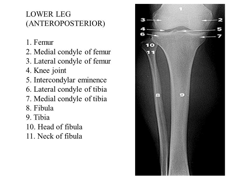 LOWER LEG (ANTEROPOSTERIOR) 1. Femur 2. Medial condyle of femur 3.