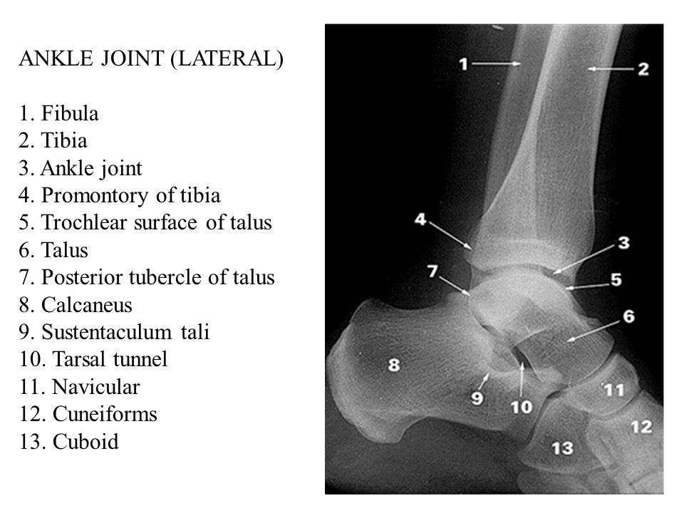 ANKLE JOINT (LATERAL) 1. Fibula 2. Tibia 3. Ankle joint 4.