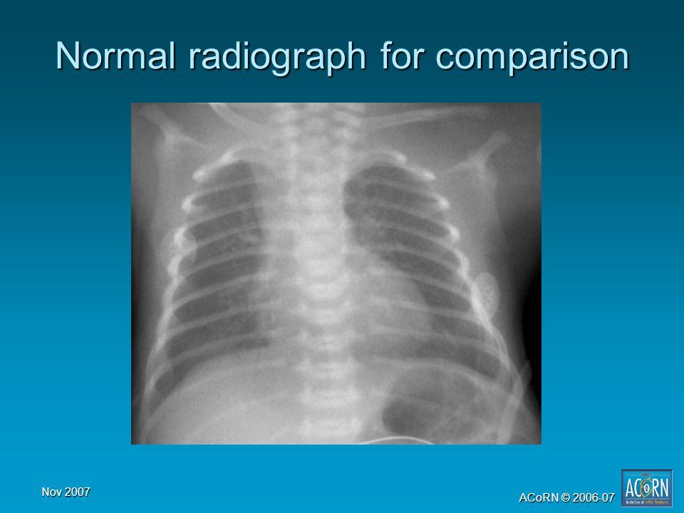 Nov 2007 ACoRN © 2006-07 Normal radiograph for comparison