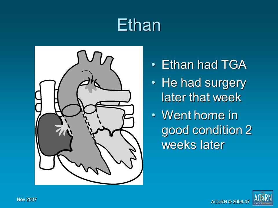 Nov 2007 ACoRN © 2006-07 Ethan Ethan had TGAEthan had TGA He had surgery later that weekHe had surgery later that week Went home in good condition 2 w
