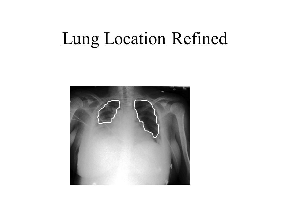 Lung Location Refined