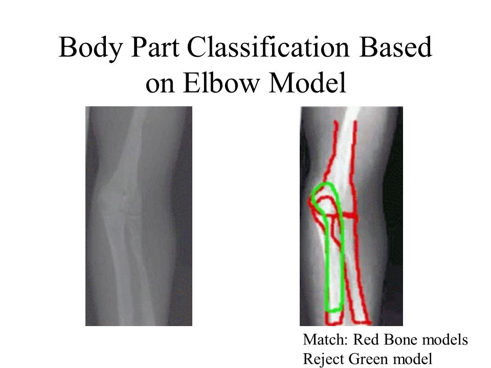 Body Part Classification Based on Elbow Model Match: Red Bone models Reject Green model