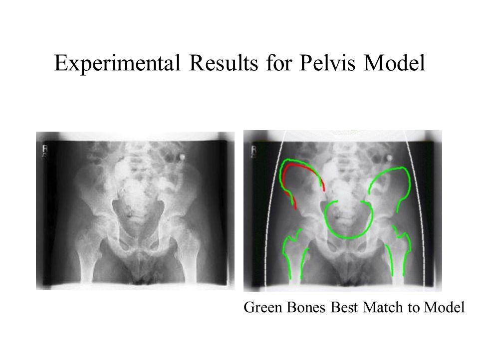 Experimental Results for Pelvis Model Green Bones Best Match to Model