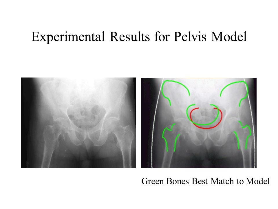 Experimental Results for Pelvis Model Green Bones Best Match to Model