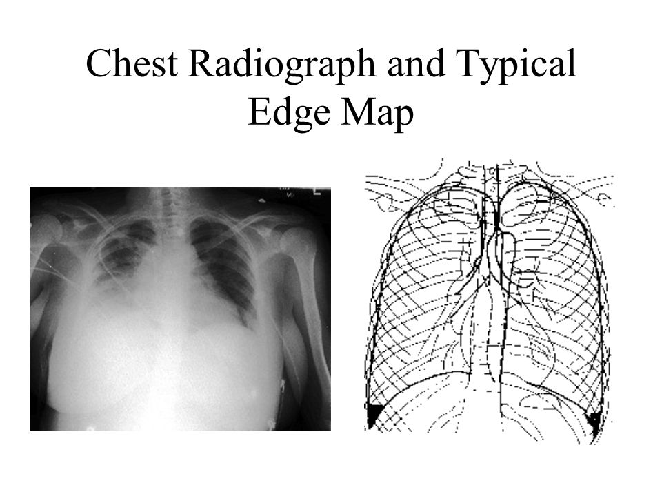 Chest Radiograph and Typical Edge Map