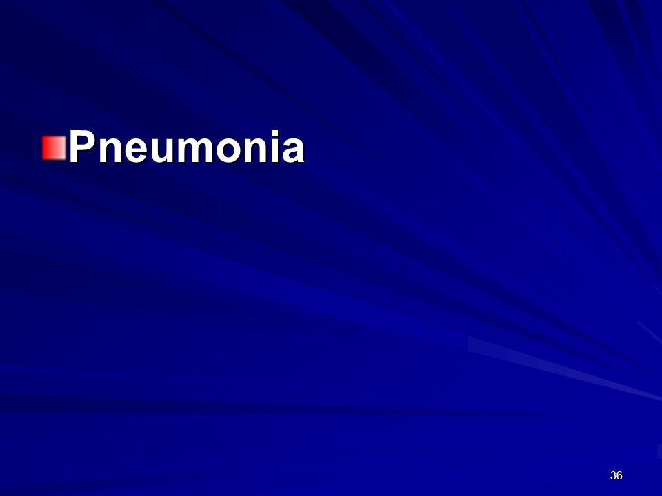36 Pneumonia