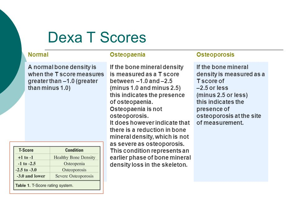 Dexa T Scores NormalOsteopaeniaOsteoporosis A normal bone density is when the T score measures greater than –1.0 (greater than minus 1.0) If the bone mineral density is measured as a T score between –1.0 and –2.5 (minus 1.0 and minus 2.5) this indicates the presence of osteopaenia.