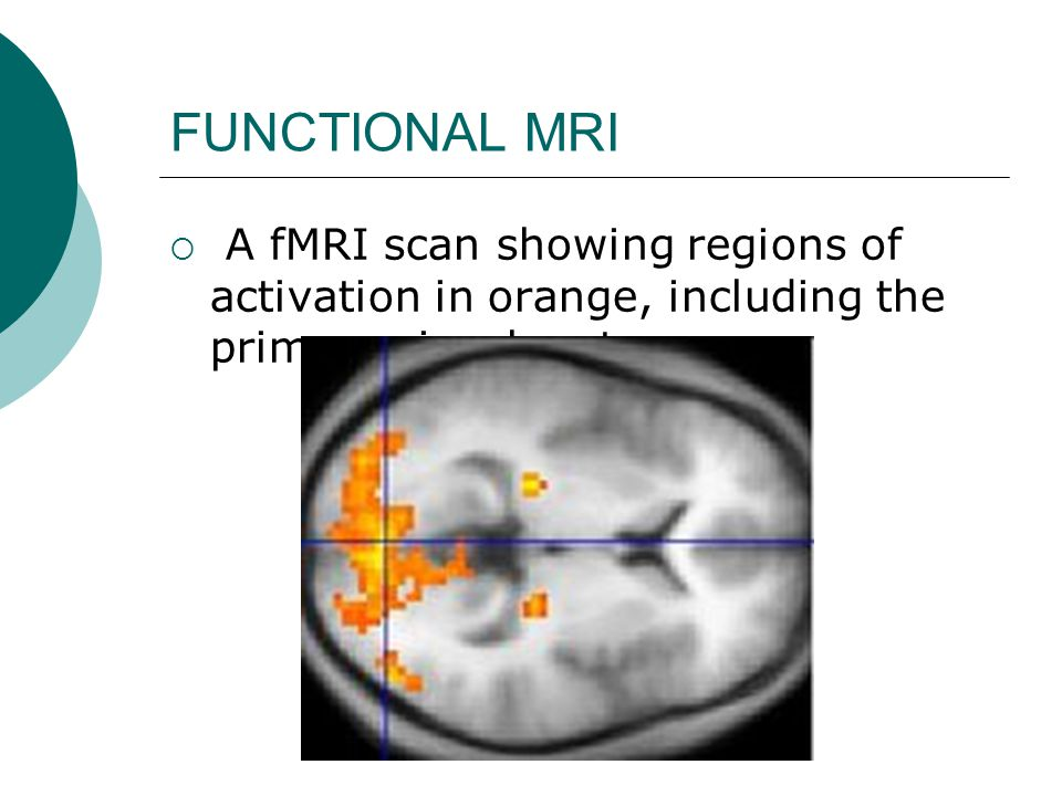FUNCTIONAL MRI  A fMRI scan showing regions of activation in orange, including the primary visual cortex.