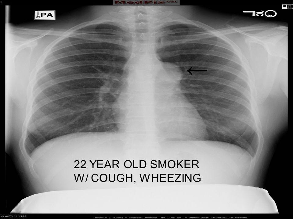 22 YEAR OLD SMOKER W/ COUGH, WHEEZING ←