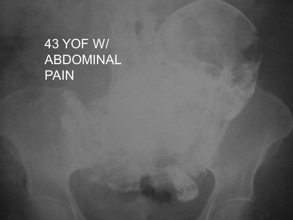 43 YOF W/ ABDOMINAL PAIN
