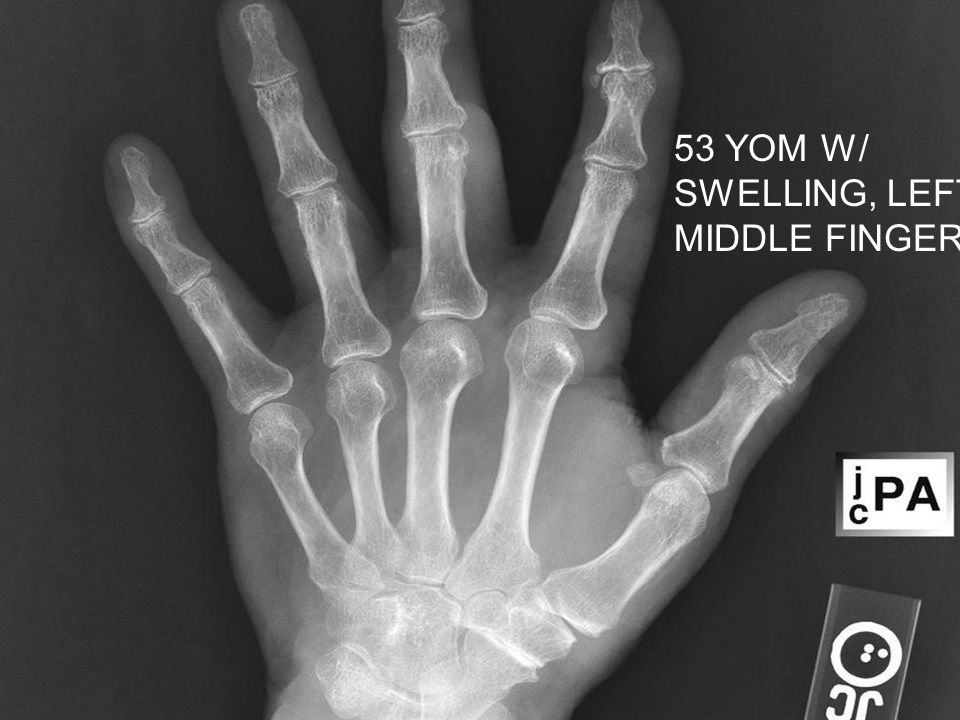 53 YOM W/ SWELLING, LEFT MIDDLE FINGER