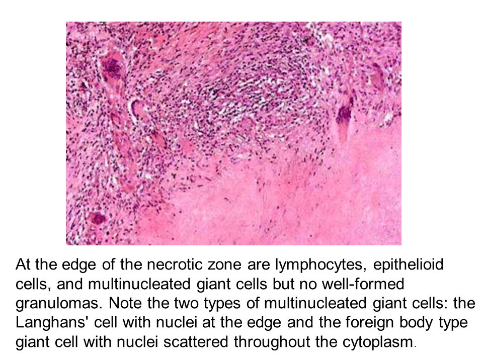 At the edge of the necrotic zone are lymphocytes, epithelioid cells, and multinucleated giant cells but no well-formed granulomas. Note the two types