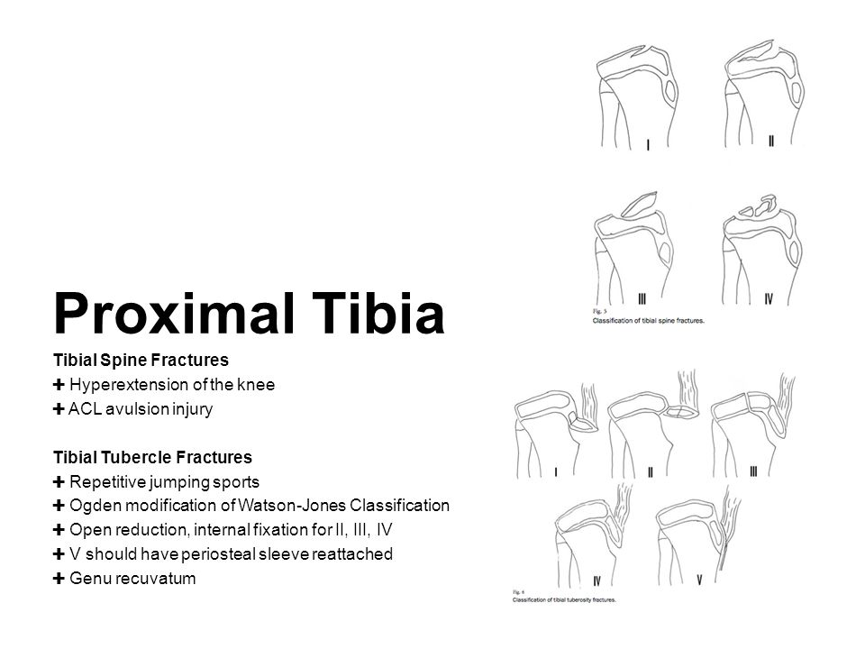 Proximal Tibia Tibial Spine Fractures ✚ Hyperextension of the knee ✚ ACL avulsion injury Tibial Tubercle Fractures ✚ Repetitive jumping sports ✚ Ogden