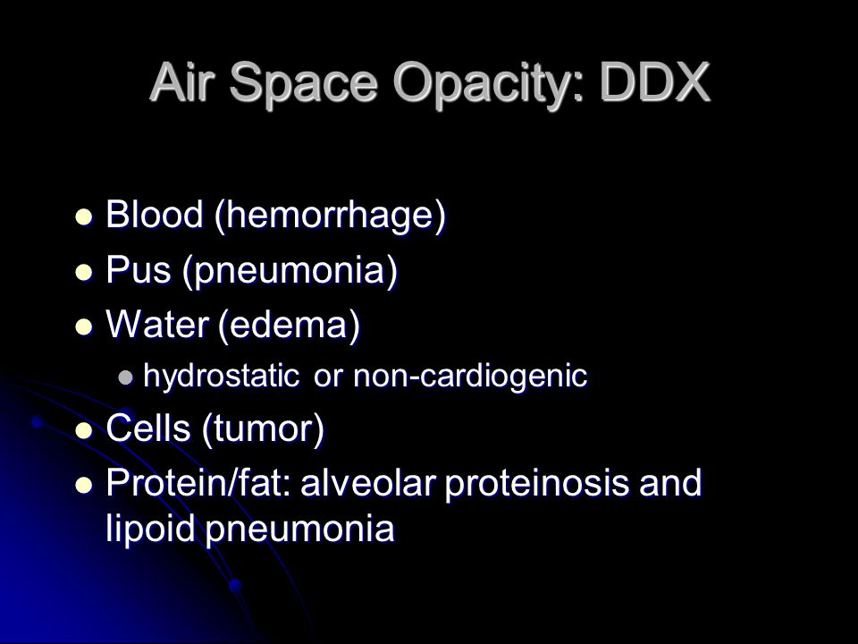 Air Space Opacity: DDX Blood (hemorrhage) Blood (hemorrhage) Pus (pneumonia) Pus (pneumonia) Water (edema) Water (edema) hydrostatic or non-cardiogeni