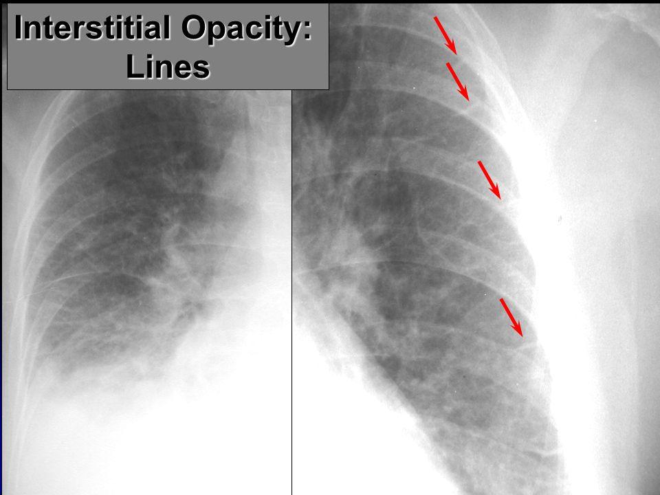 Interstitial Opacity: Lines