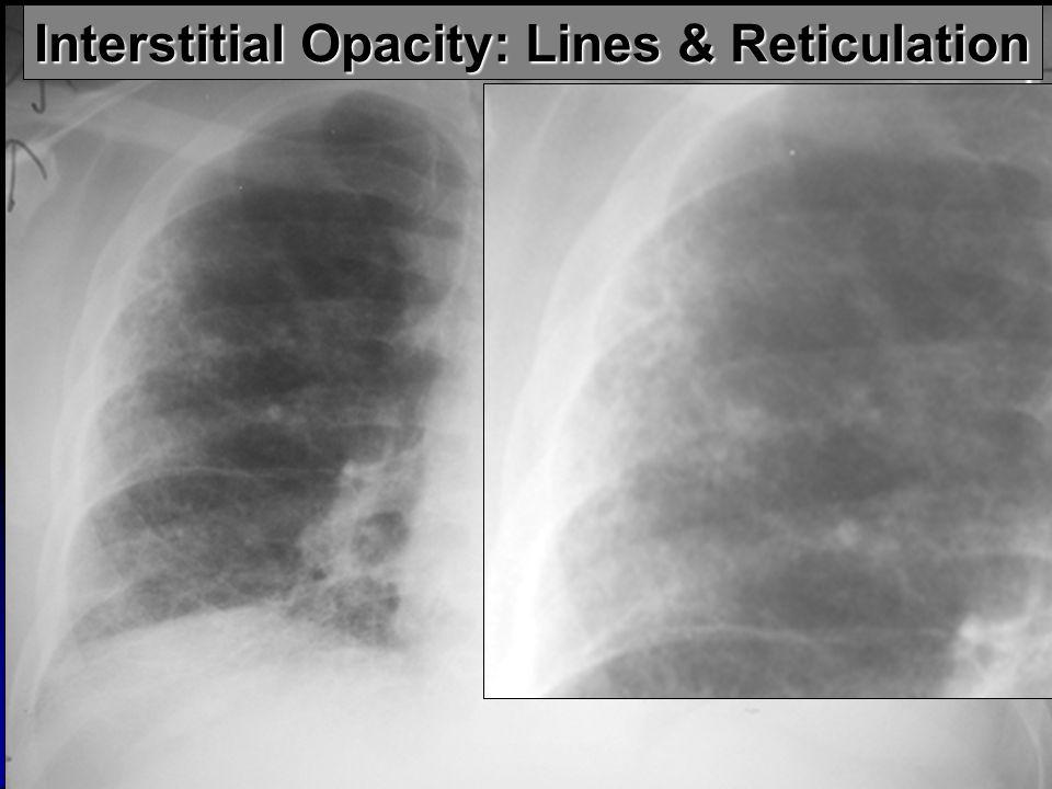 Interstitial Opacity: Lines & Reticulation