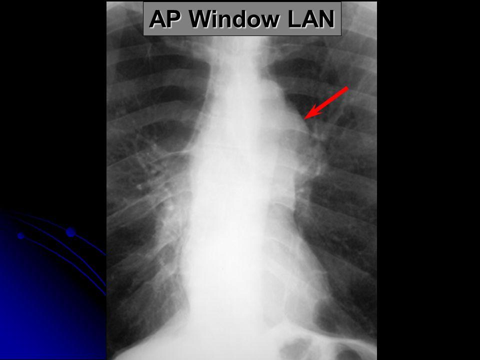 AP Window LAN
