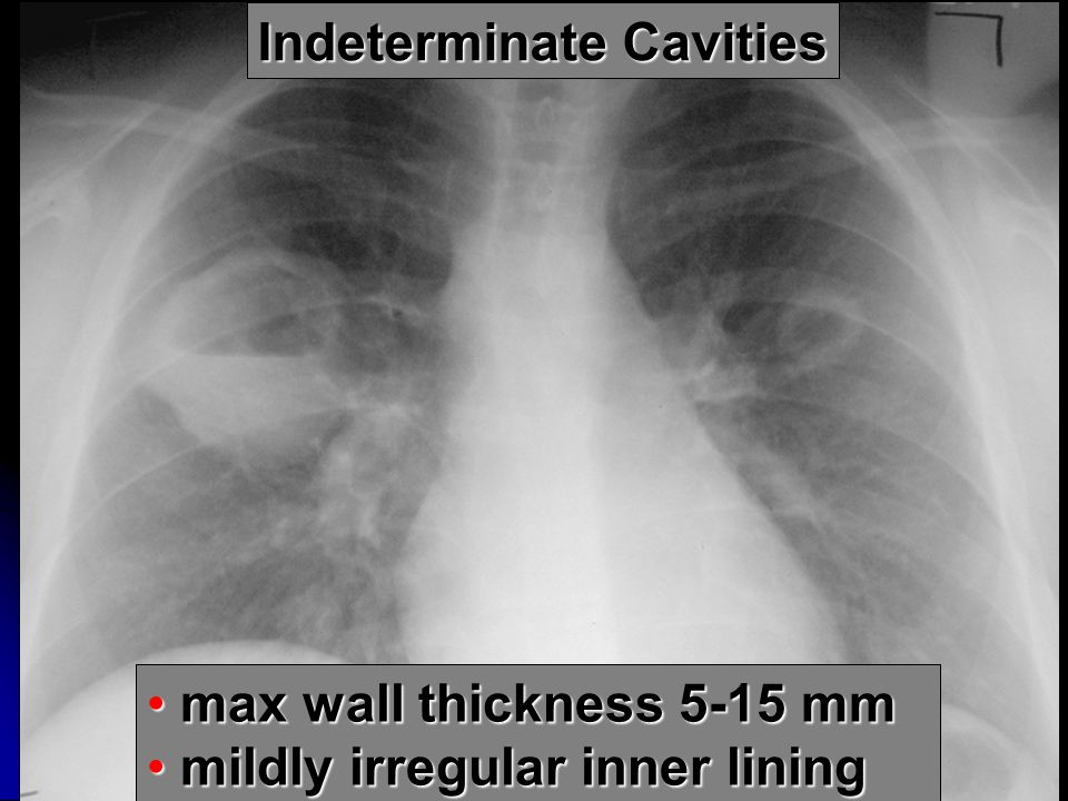 Indeterminate Cavities max wall thickness 5-15 mm max wall thickness 5-15 mm mildly irregular inner lining mildly irregular inner lining