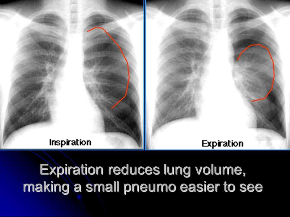 Expiration reduces lung volume, making a small pneumo easier to see